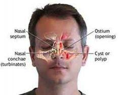 nasal polyps treatment in homeopathy