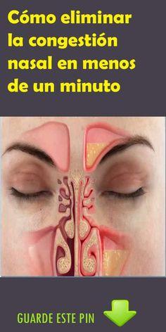 Cómo eliminar la congestión nasal en menos de un minuto. #congestión #nasal