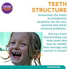 12 Best Ectodermal Dysplasia images in 2019 | Teeth, Tooth