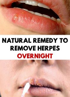 Amazing! Find out what is the miracle natural remedy that will remove the herpes overnight! It is a very common ingredient and help you to treat herpes!