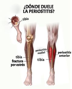 Lesiones deportivas Madrid, Massage, Therapy, Capoeira, Physical Therapy, Medicine, Physical Activities, Training, Bone Fracture