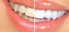 3 Best Ways To Use Hydrogen Peroxide For Teeth Whitening