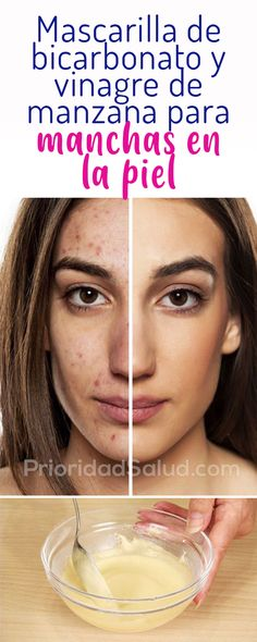 Awesome natural beauty tips are offered on our internet site. Have a look and you wont be sorry you did. Beauty Care, Diy Beauty, Beauty Skin, Beauty Hacks, Homemade Beauty, Beauty Ideas, Beauty Secrets, Beauty Guide, Beauty Advice