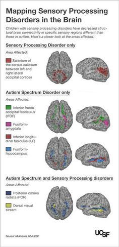 Kids with Autism and Sensory Processing Disorders Show Brain Wiring Differences | ucsf.edu - Repinned by Therapy Source, Inc. - txsource.net