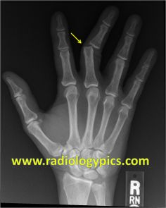 x-ray picioare varicoză