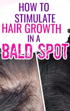 Hair serums are often used to treat hair loss and bald spots. In many cases bald patches will regrow by themselves however serums may cause the hair to grow faster. The Grow Gorgeous Intense Hair Growth Serum was shown to increase the thickness of each hair strand by up to 13%, so when hair grows back it appears fuller and thicker then before. Treatment for women   remedies   Hair growth treatment for bald spots   How to grow hair in   how to get rid of   Beauty   #hairgrowth #hair #beauty Bald Spot Treatment, Hair Growth Treatment, Grow Hair Back, Make Hair Grow, Bald Patches, Hair Remedies For Growth, Hair Serum, Bald Hair, Hair Strand