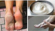 Naše nohy musia každý deň znášať obrovskú záťaž – celé hodiny pracujeme, chodíme a nemáme čas sa o ne starať. Zanedbané chodila trpia väčšinou na popraskané päty, odreniny, otlaky, alebo plesňové i…