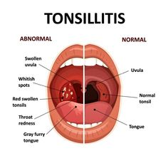 A bacterial infection always causes this illness, and unlike the typical sore throat, you will likely see white spots on the tonsil area at the back of the throat as an example. Strep Throat Remedies, Bacterial Infection, Healthy Lifestyle Changes, Sore Throat, Physical Activities, Natural Remedies, Natural Treatments, Natural Medicine