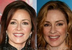 patricia heaton before and after face fillers