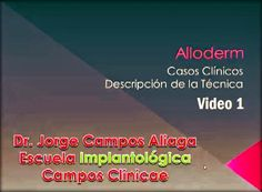 Videoconferencia: Alloderm - Casos Clínicos / Dr. Jorge Campos Aliaga (Video 1) | Odonto-TV