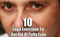 Yoga Exercises To Get Rid Of Puffy Eyes