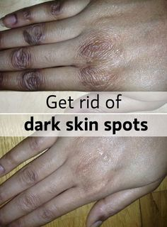 509f6c97646e650fad91f70df41d2f70  dark skin spots dark spots on hands - How To Get Rid Of Sun Tan On Brown Skin