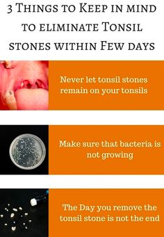 3 Things to Keep in mind to eliminate Tonsil stones within Few days Daily Health Tips, Health And Beauty Tips, Tonsilitis Remedy, Tonsil Stone Removal, Herb Diet, How To Get Rid, How To Remove, Tonsil Stones, Lemon Water