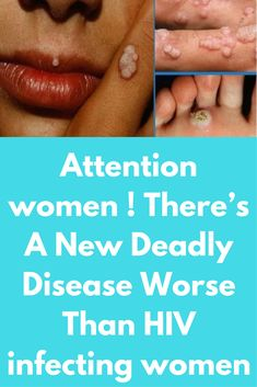 Attention women ! There's A New Deadly Disease Worse Than HIV infecting women Till now HIV was considered to be the most dangerous disease which can be spread through close contact with other human who has acquired that virus, but one can protect from getting infected with this virus by using protection. But for this new disease called Human Papillomavirus , using a protection is not enough and …