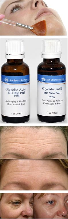 Glycolic acid and AHA's might be the anti-aging miracle workers of the new millennium. These New Age, wrinkle-smoothers from plants or milk products also help clear blemishes, hydrate the skin and lighten pigment spots by loosening one to several Glycolic acid is so powerful on the skin and at the cash register, cosmetic companies are putting them in everything from cleansers and creams to masks and body lotions. In 1993 alone, over 50 new products containing some form of glycolic acid hit…