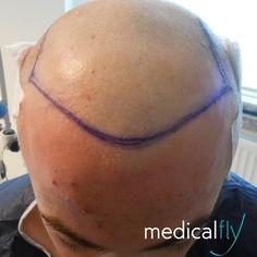 #medicalfly #Haartransplantation Patient #vorher. Die #nachher bilder folgen. 3500 #grafts wurden transplantiert #izmir #türkei #istanbul #fue #prp #hairlosssolution #turkey #garantie #hairtransplantation #berlin