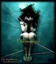 La fibromyalgie tue …