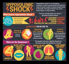 Hypovolemic shock is an emergency condition in which severe blood and fluid loss make the heart unable to pump enough blood to the body. This type of shock can cause many organs to stop working.