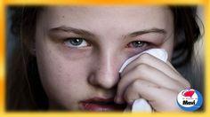 Conjuntivitis tratamiento - Remedios caseros para la conjuntivitis alegi...