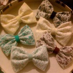 cute lace bows <3