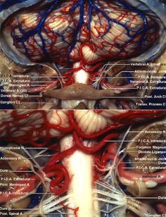Posterior view of the suboccipital surface of the cerebellum, which is supplied by the PICAs. A wide suboccipital craniotomy and C-1 posterior arch removal has been completed.