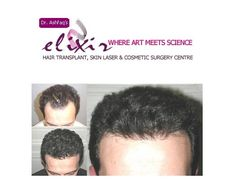 When you check for FUE hair transplant center Pakistan in your web searcher, by then you get a wide scope of results in only seconds. As there are a wide scope of offices, so it en Hair Transplant Surgery, Fue Hair Transplant, Stop Hair Loss, Prevent Hair Loss, Losing Hair Women, Hair System, Hair Falling Out, Hair Thickening