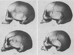 morton_skulls