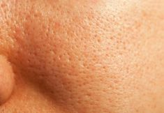 How to minimize pores? How to make pores smaller? Remedies to shrink pores naturally. Get rid of large pores. How to reduce pore size? How to unclog pores? Beauty Care, Beauty Skin, Health And Beauty, Beauty Tips, Diy Skin Care, Skin Care Tips, Make Pores Smaller, Wild About Beauty, Reduce Pore Size