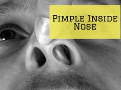 Learn the reasons behind your pimple inside nose and find out how to get rid of those painful pimples with medicinal and traditional methods. Ingrown Hair Remedies, Pimples Remedies, Nose Pimples, Poping Pimples, Painful Pimple, Blind Pimple