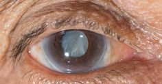 EEEEE not yet tested in humans - eyedrop to dissolve cataracts http://www.sciencealert.com/scientists-have-developed-an-eye-drop-that-can-dissolve-cataracts-from-eyes