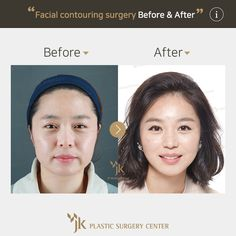 Jk Plastic Surgery In South Korea Korean Best Extreme Clinic