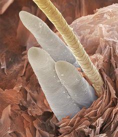 eyelash mites - Google Search