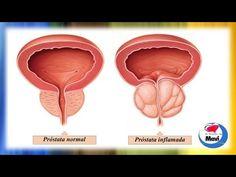 57 Best Prostata Images Natural Medicine Natural