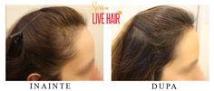 Live Hair Hair Serum, Live, Fitness