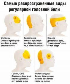 Давление или мигрень? 7 причин головной боли и что делать