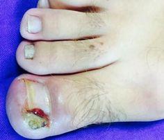 Unha encravada - Dermatologia e saúde #unhaencravada #cirurgiadeunha #unha #dermatologiaesaude