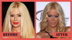 Jenna Jameson Plastic Surgery Before And After1 Jenna Jameson Plastic Surgery #JennaJamesonPlasticSurgery #JennaJameson #celebritypost