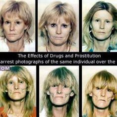 The effects of drugs and prostitution---This is a series of arrest photographs of the same individual over the course of 10 years.  Gulp.