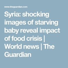 Syria: shocking images of starving baby reveal impact of food crisis | World news | The Guardian