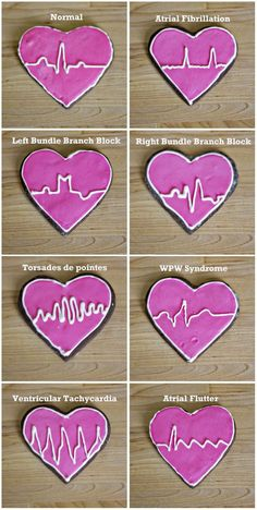 ECG Chocolate Roll-Out Cookies. Looks like a delicious way to study. This is what nursing students end up doing. They start making some nice cookies and end up thinking about ECGs