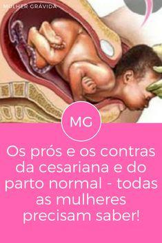 Parto dicas | Os prós e os contras da cesariana e do parto normal - todas as mulheres precisam saber! | O que você sabe sobre cesariana e parto normal? Quais as vantagens eas desvantagens? Leia e saiba ↓ ↓ ↓
