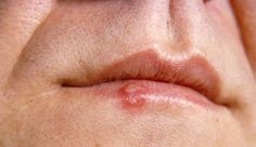 essential oil recipe to get rid of cold sores