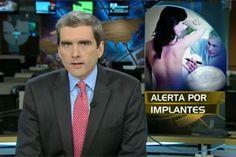 Noticiero Univision: Alerta por implantes mamarios
