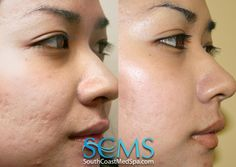Suttee was astounded by her results. After only two profractional laser resurfacing treatments at SCMS she felt her complexion was perfect, and she actually started saving money as she didn't have to hide behind makeup anymore! Laser Acne Scar Removal, Acne Scar Removal Treatment, Laser For Acne Scars, Adult Acne Treatments, Pimple Scars, Skin Resurfacing, Acne Causes, How To Get Rid Of Acne, Beauty