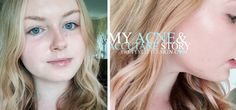 My Acne & Roaccutane Journey