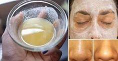 El bicarbonato de sodio elimina las células muertas de la piel sin causar irritación y, como un extra, hace que la piel luzca bella y joven. Para este tratamiento toma un poco de bicarbonato, ponerlo en una taza y después añadirle un poco de agua caliente. Una vez listo mezclamos hasta que se forme una …