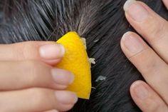 ¿Cómo combatir la caída del cabello con jugo de limón? - Mejor con Salud