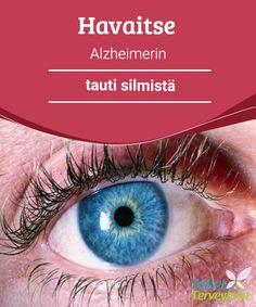 Havaitse Alzheimerin tauti silmistä   Viimeaikaiset Yhdysvalloissa ja #Kiinassa tehdyt tutkimukset ovat osoittaneet, että on #mahdollista havaita #Alzheimerin tauti silmistä.