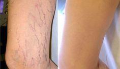 Muitas mulheres sofrem com varizes, que deixam as pernas com uma aparência nada agradável, além de doloridas. A causa está no mau funcionamento do sistema circulatório. Esse inchaço afeta as pernas, mas também pode ocorrer em outras partes do corpo, como as hemorroidas. Se não tratado a tempo, o problema se torna crônico, pondo em …