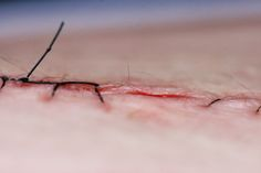 Close up shot of skin with a wound closed by stitches